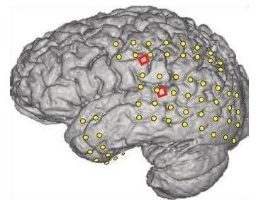 癫痫病是怎么进行分类的